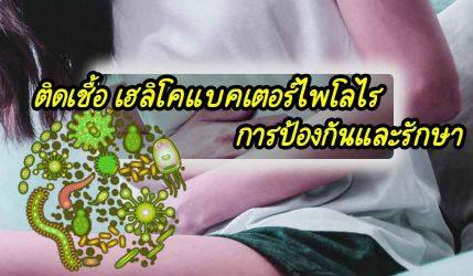 ติดเชื้อ เฮลิโคแบคเตอร์ไพโลไรการป้องกันและรักษา