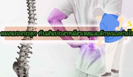 หมอนรองกระดูก ทับเส้นประสาทมีสาเหตุและลักษณะอย่างไร