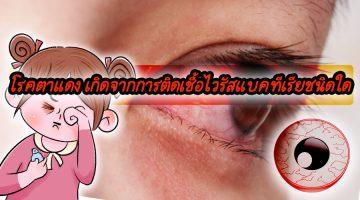 โรคตาแดง เกิดจากการติดเชื้อไวรัสแบคทีเรียชนิดใด