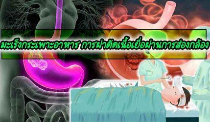มะเร็งกระเพาะอาหาร การผ่าตัดเนื้อเยื่อผ่านการส่องกล้อง